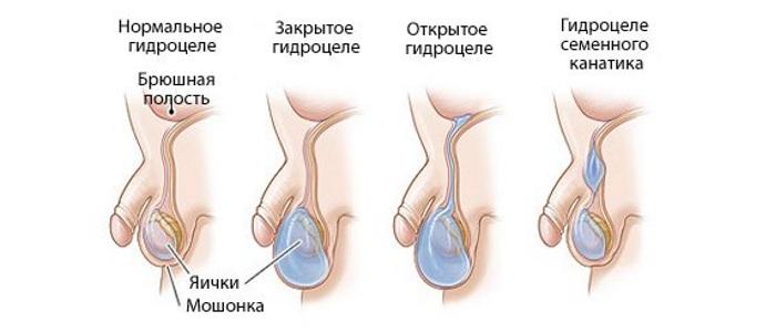 Водянка яичек гидроцеле