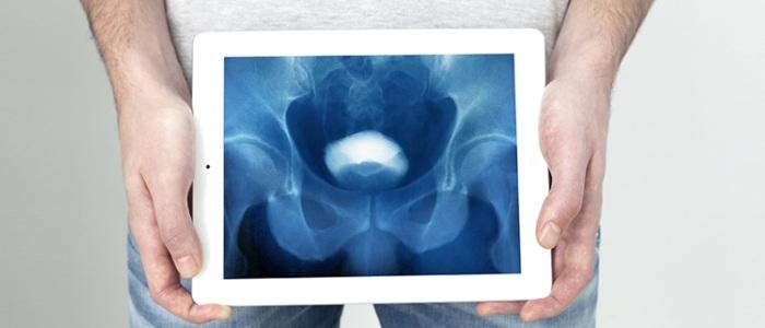 Лечение рака полового члена