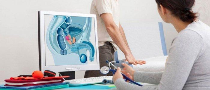 Стадии простатита и лечение