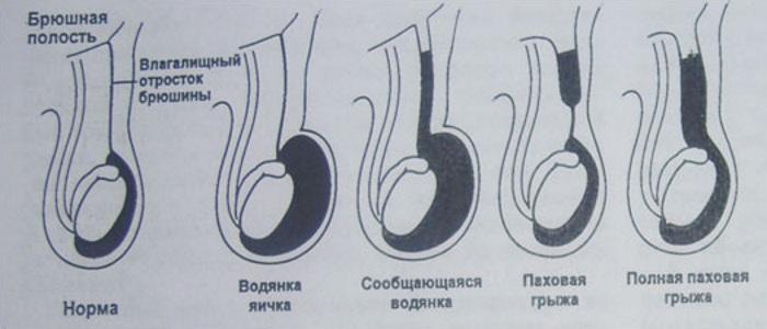 Гидроцеле и паховая грыжа